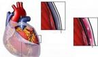 Nguy cơ do viêm màng ngoài tim co thắt