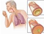 Dùng thuốc trong viêm phế quản mạn