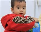 Trẻ đau mỏi xương có thể do viêm khớp