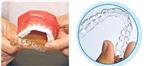 Phương pháp chỉnh răng mới cho trẻ