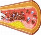 Cách nhìn mới về xơ vữa động mạch