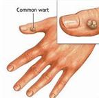 Hạt cơm - Bệnh ngoài da thường gặp