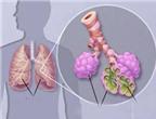 Viêm phổi do phế cầu ở trẻ em: Phòng ngừa thế nào?