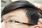 Cách gì chữa tóc bạc sớm?