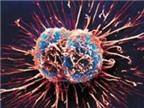 Phương pháp mới điều trị ung thư