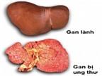 Phương pháp mới chẩn đoán ung thư gan
