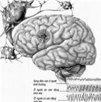 Dùng thuốc trị động kinh phải theo thể bệnh