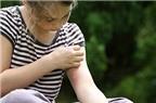 Mẹo trị vết muỗi đốt