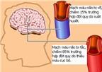 Dự đoán trước đột quỵ não