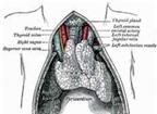 Dấu hiệu nhận biết bệnh nhược cơ