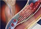 Huyết khối tĩnh mạch - Nguyên nhân và cách trị