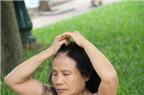 Chườm đá giúp giảm đau nửa đầu