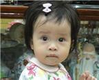 Chữa bệnh cho bé không dùng kháng sinh