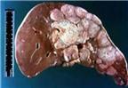 Trị ung thư gan bằng vắc xin ngừa bệnh đậu mùa