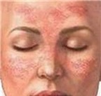 Người bị lupus ban đỏ cần biết