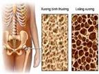 Những tác dụng không mong muốn khi điều trị loãng xương