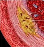 Thuốc hạ cholesterol có tác dụng đối với bệnh cúm