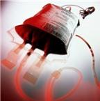 Một số điều cần biết về bệnh ưa chảy máu