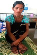 Hoảng hồn với những bệnh lạ ở Việt Nam