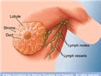 Phát hiện đột biến gen mới gây ung thư vú