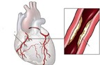 Một số loại thuốc ngừa tai biến vữa xơ động mạch