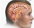 Nhận biết xuất huyết não