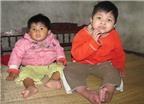Hai bé gái mắc bệnh lạ