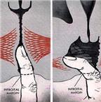 Những điều cần biết về chứng co thắt âm đạo ở phụ nữ