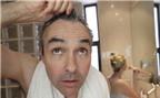 Cách chữa hói đầu