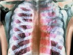 Những bệnh lao thường mắc phải và cách phòng tránh