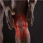 6 bước giảm đau do viêm khớp dạng thấp