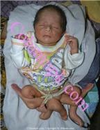 Kỳ lạ: Em bé  có sáu chân