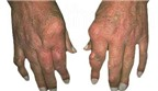 Tác dụng phụ của colchicin trong điều trị gút