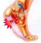 Điều trị đau gót chân?