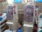 Đưa máy siêu lọc máu điều trị bệnh viêm sừng bàn tay bàn chân