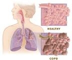 Cách phát hiện bệnh phổi tắc nghẽn mạn tính