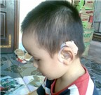 Những điều cần biết khi sử dụng máy trợ thính