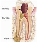 Phục hồi thân răng sau điều trị