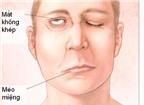Điều trị liệt mặt sau mổ u