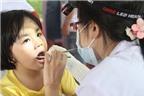 Trẻ em có nên tẩy trắng răng?