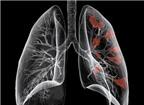 10 bệnh ung thư con người dễ mắc phải nhất