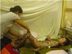 Dị ứng thuốc, bé trai bị tróc da toàn thân