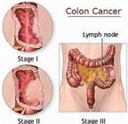 Ung thư đại trực tràng, căn bản là phải biết sớm, trị sớm