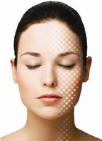 Phương pháp điều trị sẹo rỗ hiệu quả