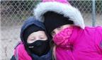 Trẻ phát ban có thể do dị ứng lạnh