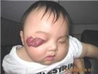 U máu ở trẻ em: Nguyên nhân và cách điều trị