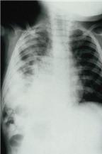 Thuốc điều trị viêm phổi ở trẻ em