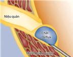 Chích keo sinh học ngừa bệnh trào ngược bàng quang - niệu quản