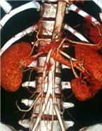Nút động mạch trong điều trị chấn thương thận