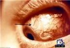 Đeo kính áp tròng không vệ sinh bị vi trùng